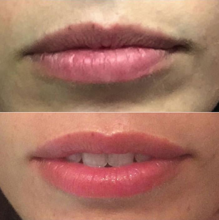 maquillage-permanent-bouche-avant-apres